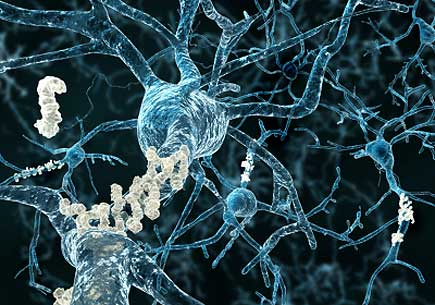 Amyloid plaques on axons of neurons affected by Alzheimer's disease. (stock image)