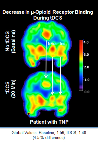 The figure above shows the brain of a chronic pain patient before and during electrical stimulation to induce pain relief. The areas in red represent the relative number of free mu-opioid receptors, the main target of pharmaceutical opiates. They found a decrease in availability of those receptors during electrical stimulation. The results indicate for the first time the active release of local mu-opioid, a powerful substance in the brain that, when binds to the receptor, changes pain perception.
