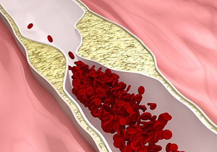 3D rendering of Atherosclerosis disease (clogged arteries). (stock image)