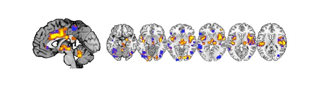 Neurologic signature for physical pain across multiple systems. Image courtesy: Tor Wager, Colorado University