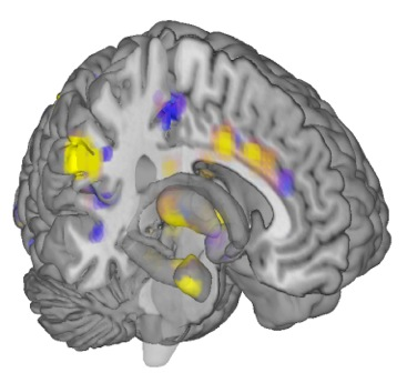 Neurologic signature for physical pain, courtesy of Tor Wager, Colorado University