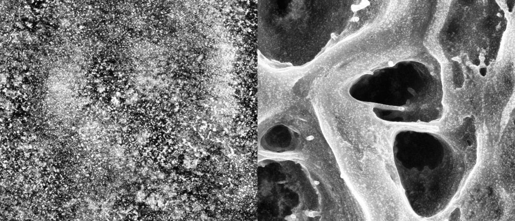 LEFT: an electron microscope image of the gold nanoparticles in a relaxed sample of the layer-by-layer material. The nanoparticles are dispersed. RIGHT: a similar sample stretched to a little over twice its original length, at the same magnification. The nanoparticles form a distinct network. Courtesy of Nicholas Kotov