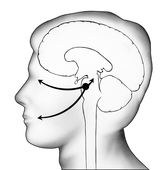 Illustration portraying where herpes type one virus can remain dormant within the brain. Arrows to the eye and mouth indicate some regions where the virus can become active. (stock image)