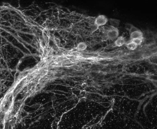 Clock neurons in a small region of the fly brain.