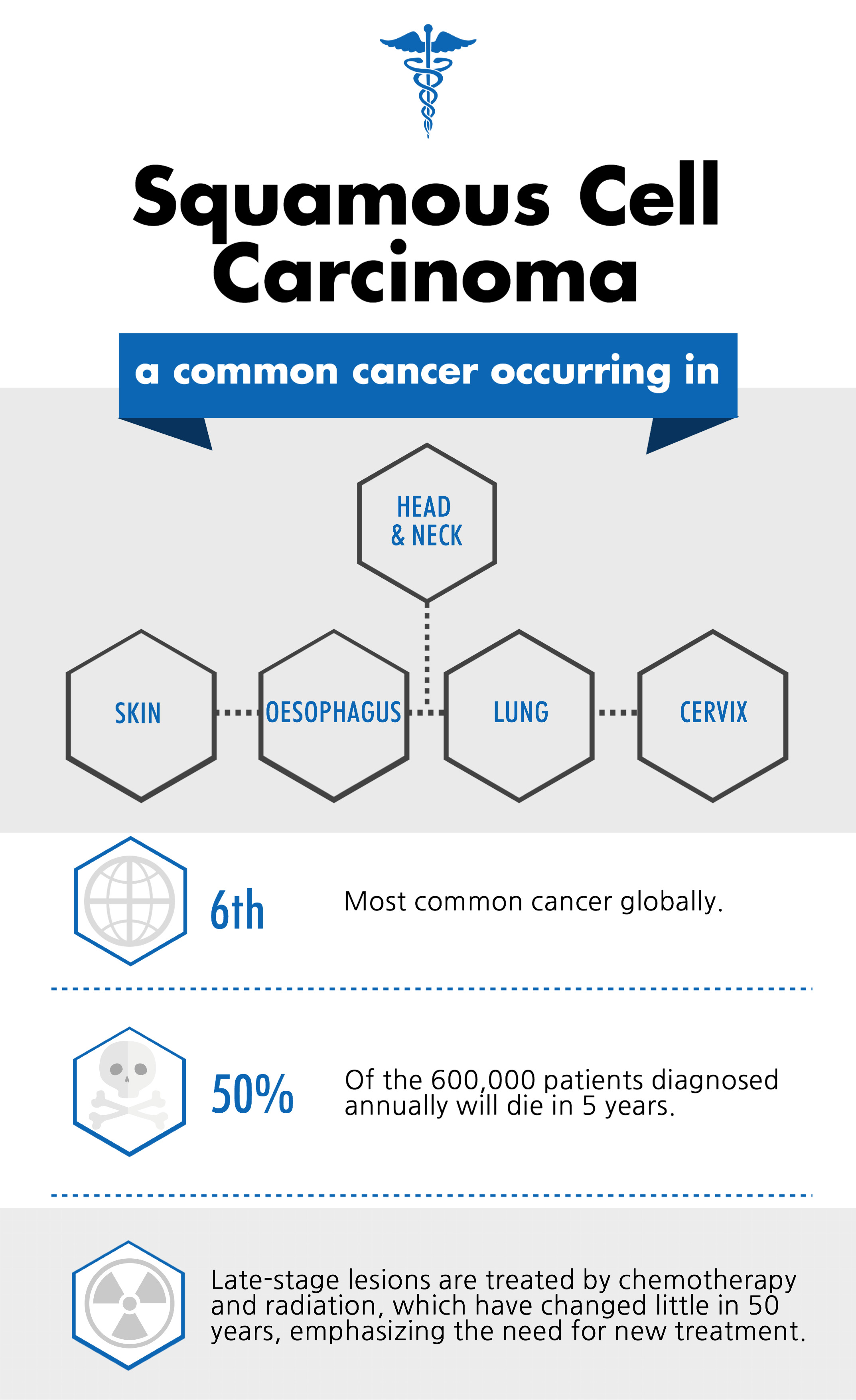 An infographic about squamos cell carcinoma.