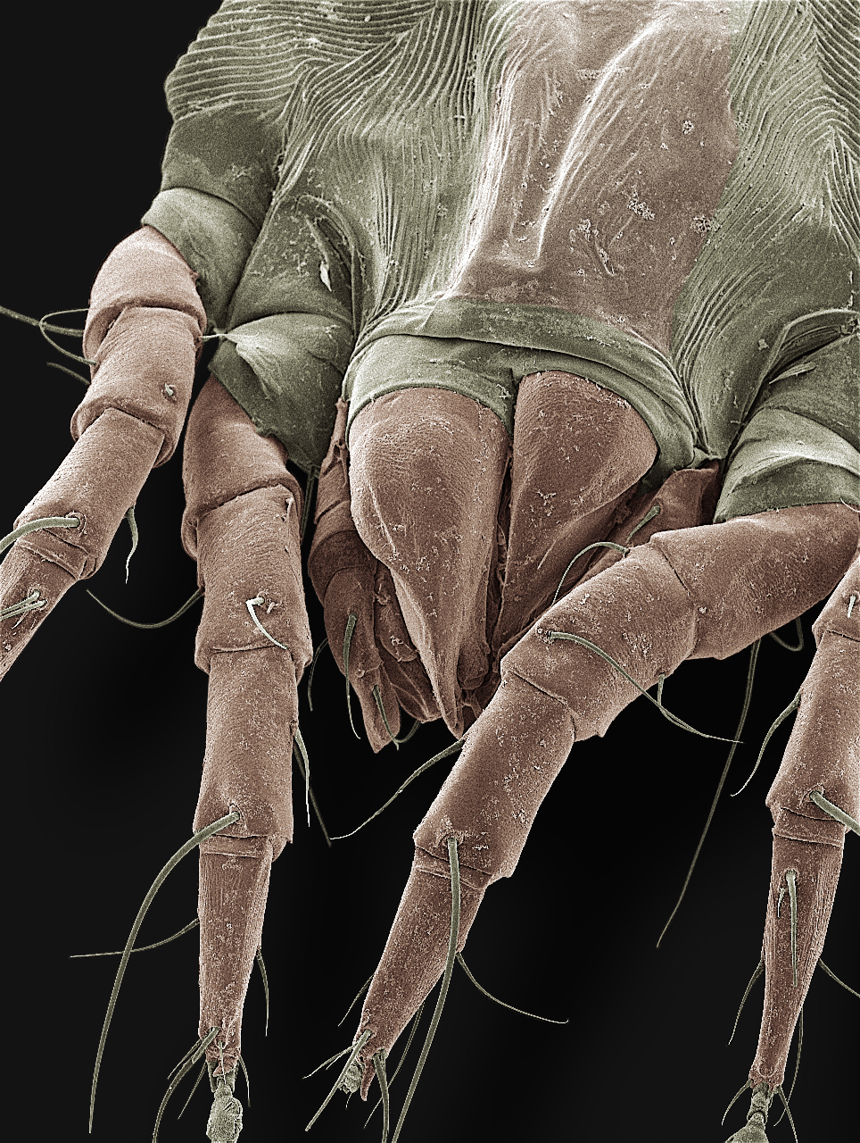 A scanning electron microscope closeup (magnification X550) of an American house dust mite, showing four of its eight legs, as well as the mouthparts. Image credit: Ellen Foot Perkowski