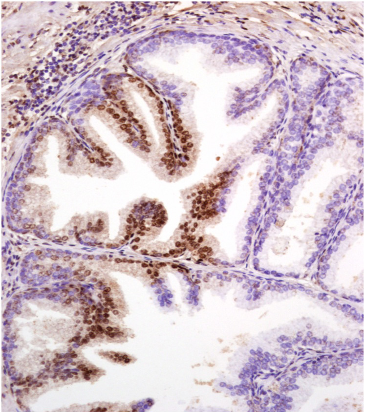 Tissue sample obtained in prostate cancer study. The cells stained brown show early prostate cancer, the blue stained cells indicate healthy cells. Image provided by Renny Franceschi, professor of Dentistry at the University of Michigan.