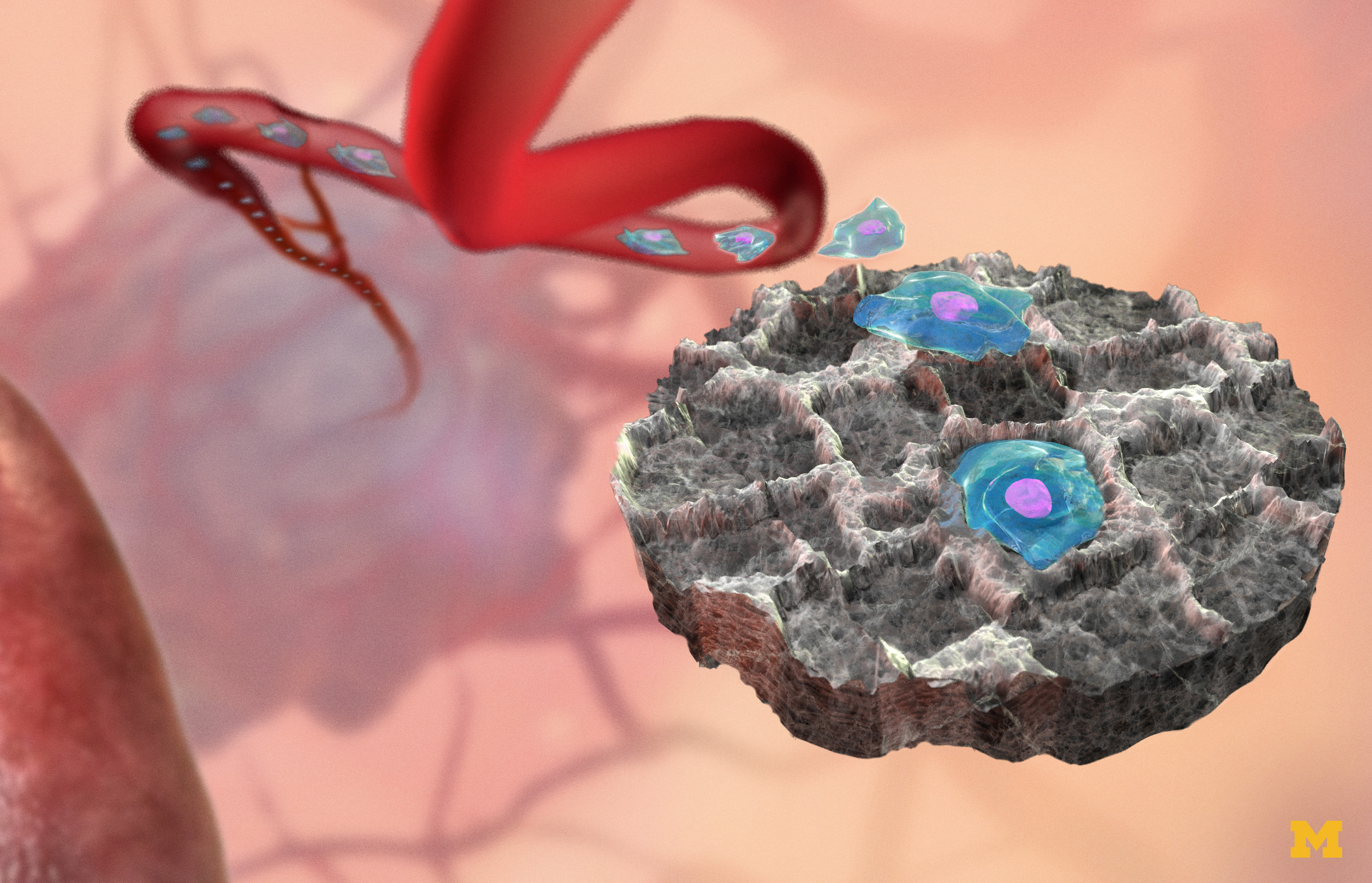 Conceptual illustration of implantable sponge-like device attracts cancer cells from the bloodstream.