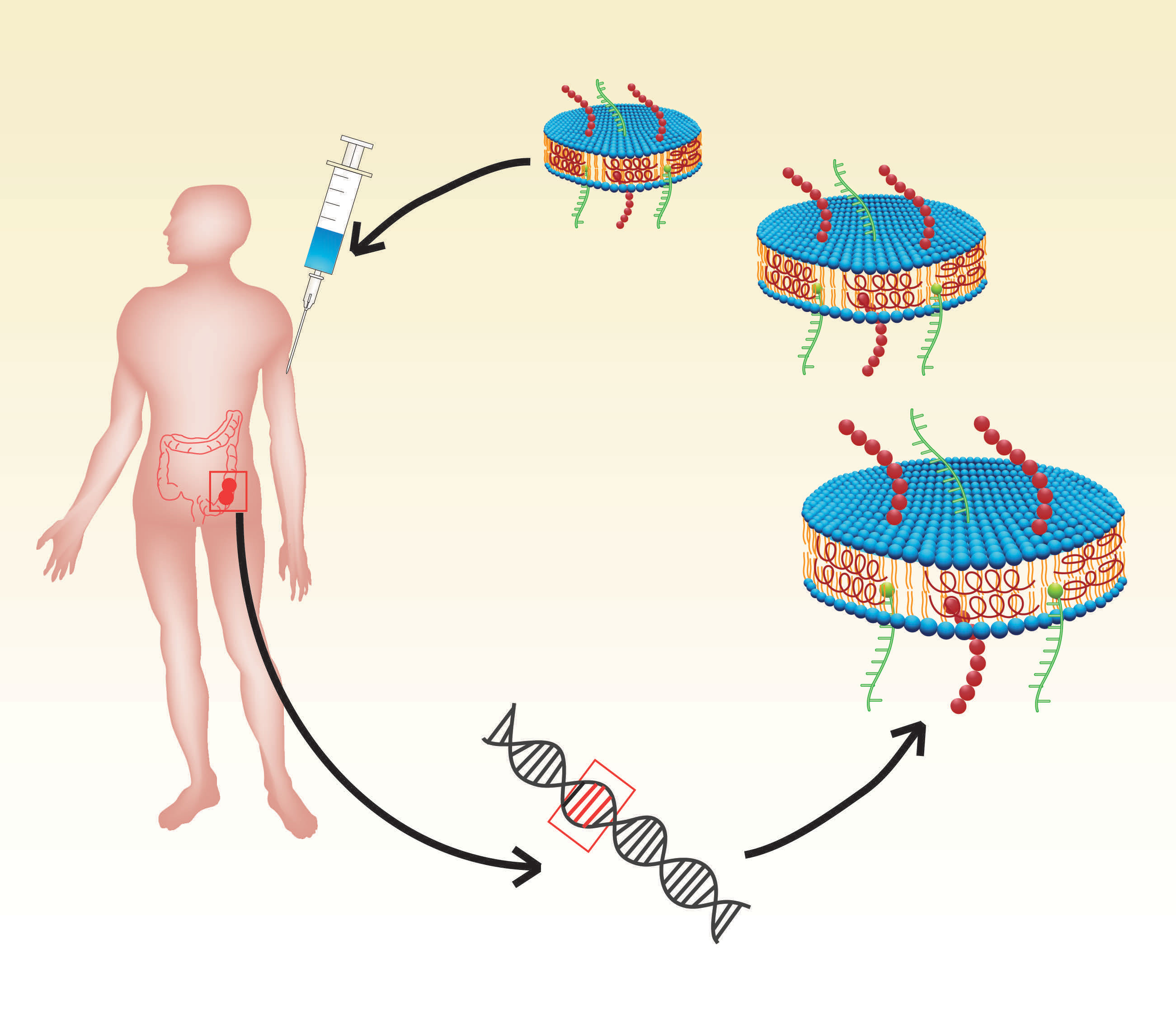 The therapeutic cancer vaccine employs nanodiscs (in blue) loaded with tumor neoantigens, which are unique mutations from the patient's own tumor cells. By generating T-cells to recognize the neoantigens, the nanodiscs can target a patient's cancer mutations and fight to eliminate cancer cells and prevent tumor growth. Image credit: James Moon, John Gideon Searle