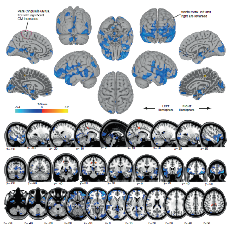 "Blue shows areas of gray matter volume decrease, likely reflecting shifting of cerebrospinal fluid. Orange shows regions of gray matter volume increase, in the regions that control movement of the legs. This likely reflects brain plasticity associated with ""learning how to move in microgravity"". This is the first image of how spaceflight changes brain structure in humans!"