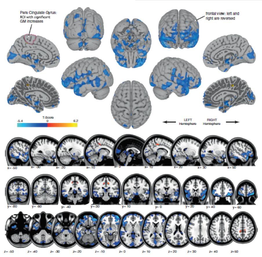 """O azul mostra áreas de diminuição do volume da substância cinzenta, provavelmente refletindo o deslocamento do líquido cefalorraquidiano. O laranja mostra regiões de aumento de volume de matéria cinzenta, nas áreas que controlam o movimento das pernas. Isso provavelmente reflete a plasticidade cerebral associada a """"aprender a se mover na microgravidade"""". Esta é a primeira imagem de como um vôo espacial muda a estrutura do cérebro em seres humanos!"""
