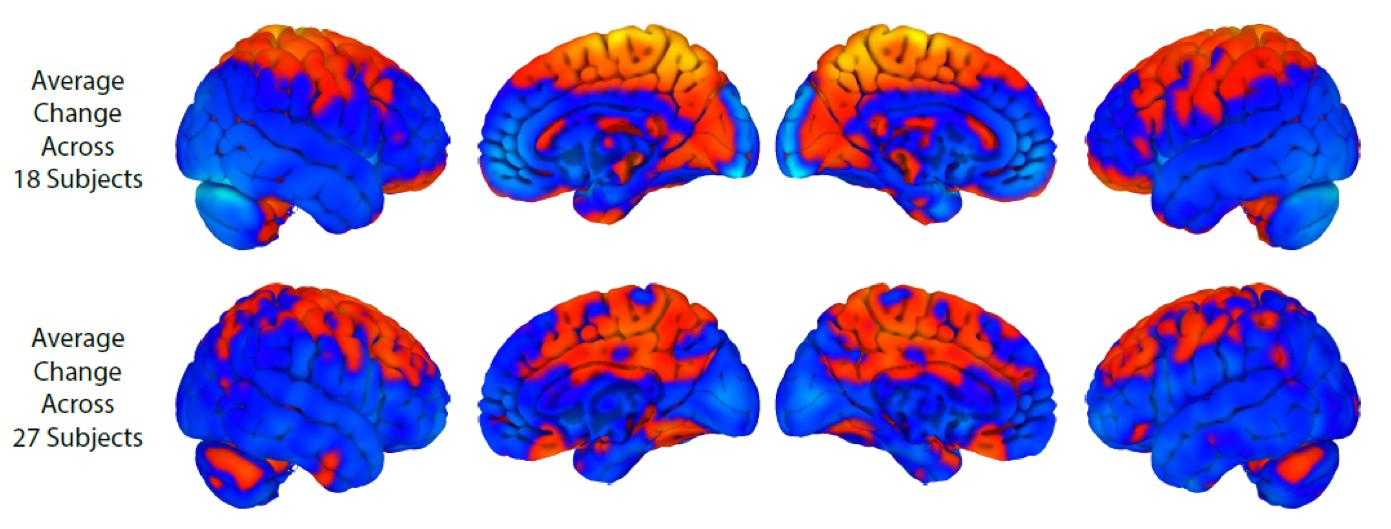 A linha superior mostra alterações do cérebro com descanso de longa duração. A linha inferior mostra mudanças no cérebro com vôos espaciais. Laranja mostra regiões de aumento. Azul = diminuição. Há alguma sobreposição, mas também diferenças notáveis com o vôo espacial mostrando mais mudanças no cerebelo, uma estrutura que está envolvida na aprendizagem motora.