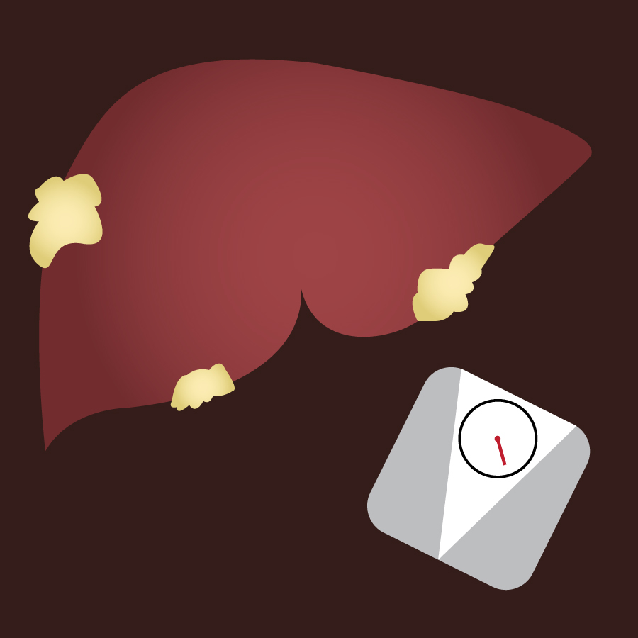 Illustration of a fatty liver. Image credit: Kaitlyn Beukema