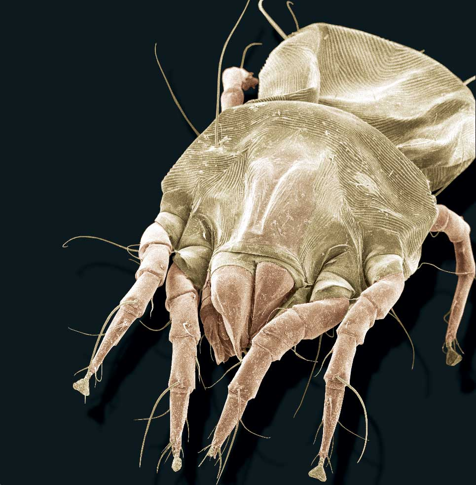 A scanning electron microscope image of an American house dust mite, Dermatophagoides farinae. Image credit: Ellen Foot Perkowski