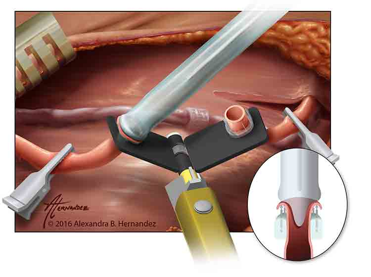 The arterial everter can help surgeons affix an artery to a separate tool in order to suture it. Image credit: © Alexandra B. Hernandez. For permission to use this illustration, please contact Alexandra Hernandez