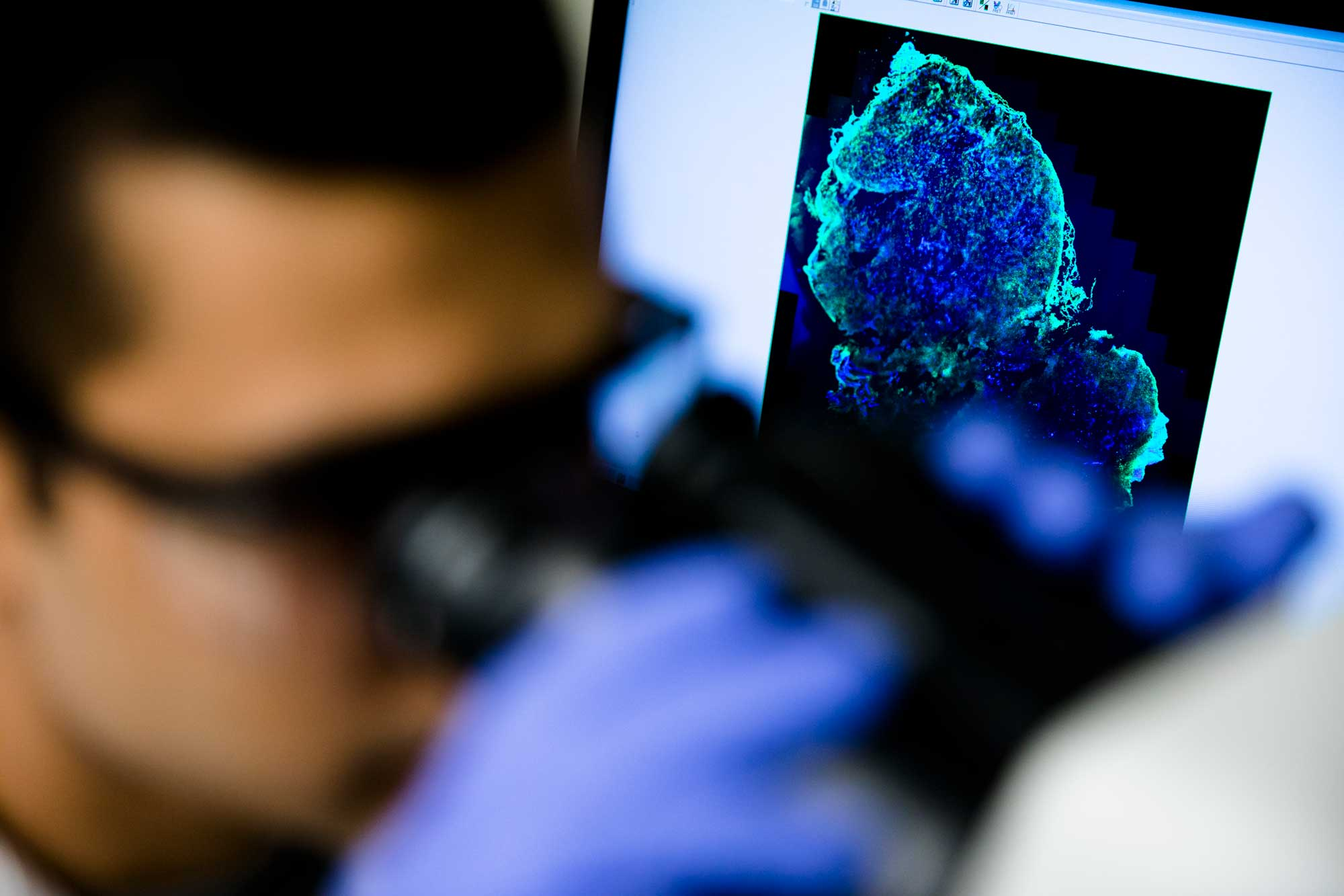 Sumit Bhatnagar, a PhD student in chemical engineering, inspects and analyzes tumor cells used in his research developing a diagnostic screening pill for breast cancer and other diseases under the direction of Greg Thurber, an assistant professor in chemical engineering. The pill would contain a fluorescent imaging agent connected to a targeting molecule that binds to cancerous cells in breast tissue, in order to make earlier and more accurate breast cancer diagnoses. Image credit: Evan Dougherty, Michigan Engineering