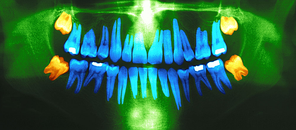 Dental panoramic x-ray. In orange,the wisdom teeth. Image courtesy: IHPI