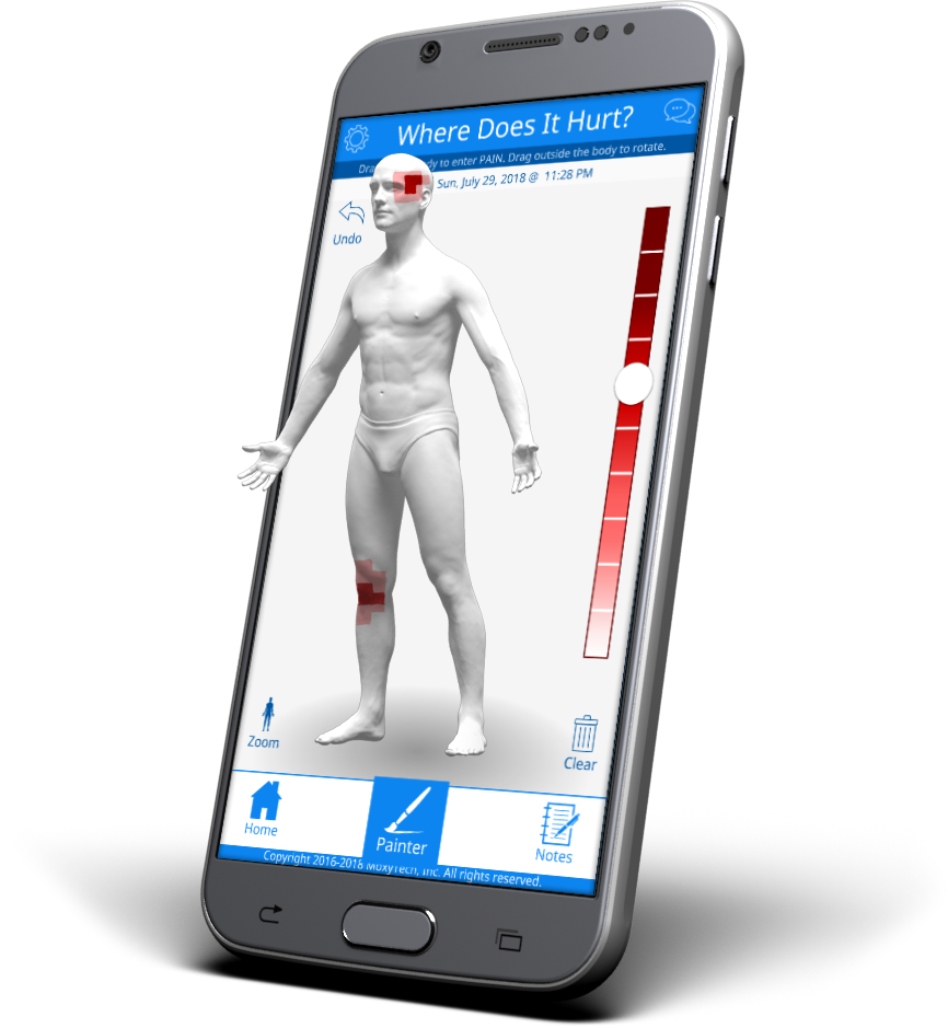 Screenshot of GeoPain, a mobile pain tracking app that displays a 3D image of the body to help people track their pain between doctor appointments to improve their treatment. Image courtesy: MoxyTech