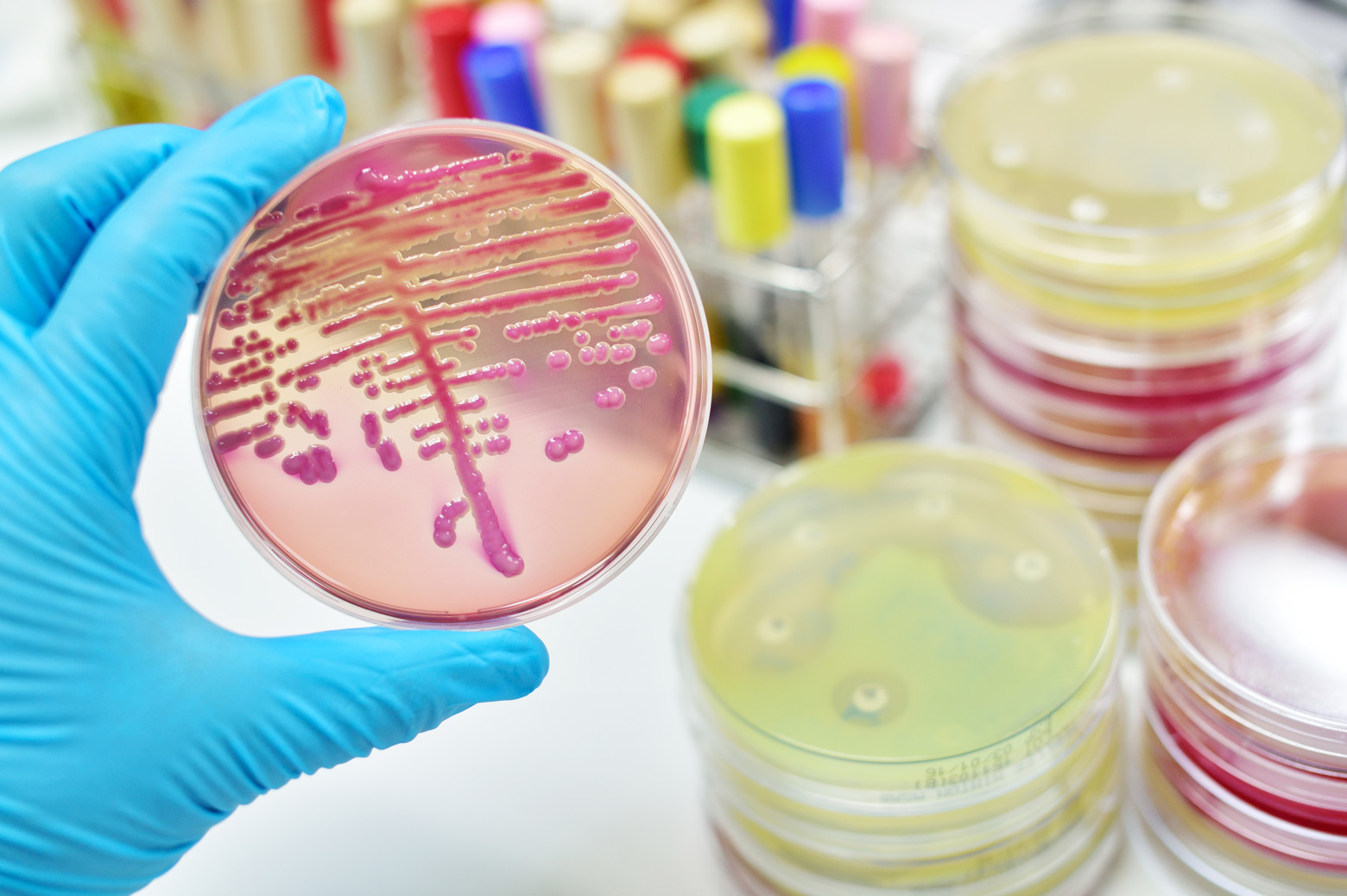 Colony of bacteria in culture medium plate. Getty Images