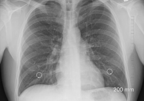 X-ray of lungs. Image credit: Pixabay user, oracast