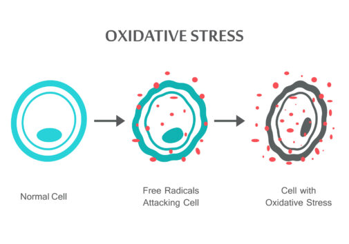 Oxidative Stress Diagram. Normal Cell, to the Free Radicals Attacking the Cell, to a Cell with Oxidative Stress. Image Credit: iStock