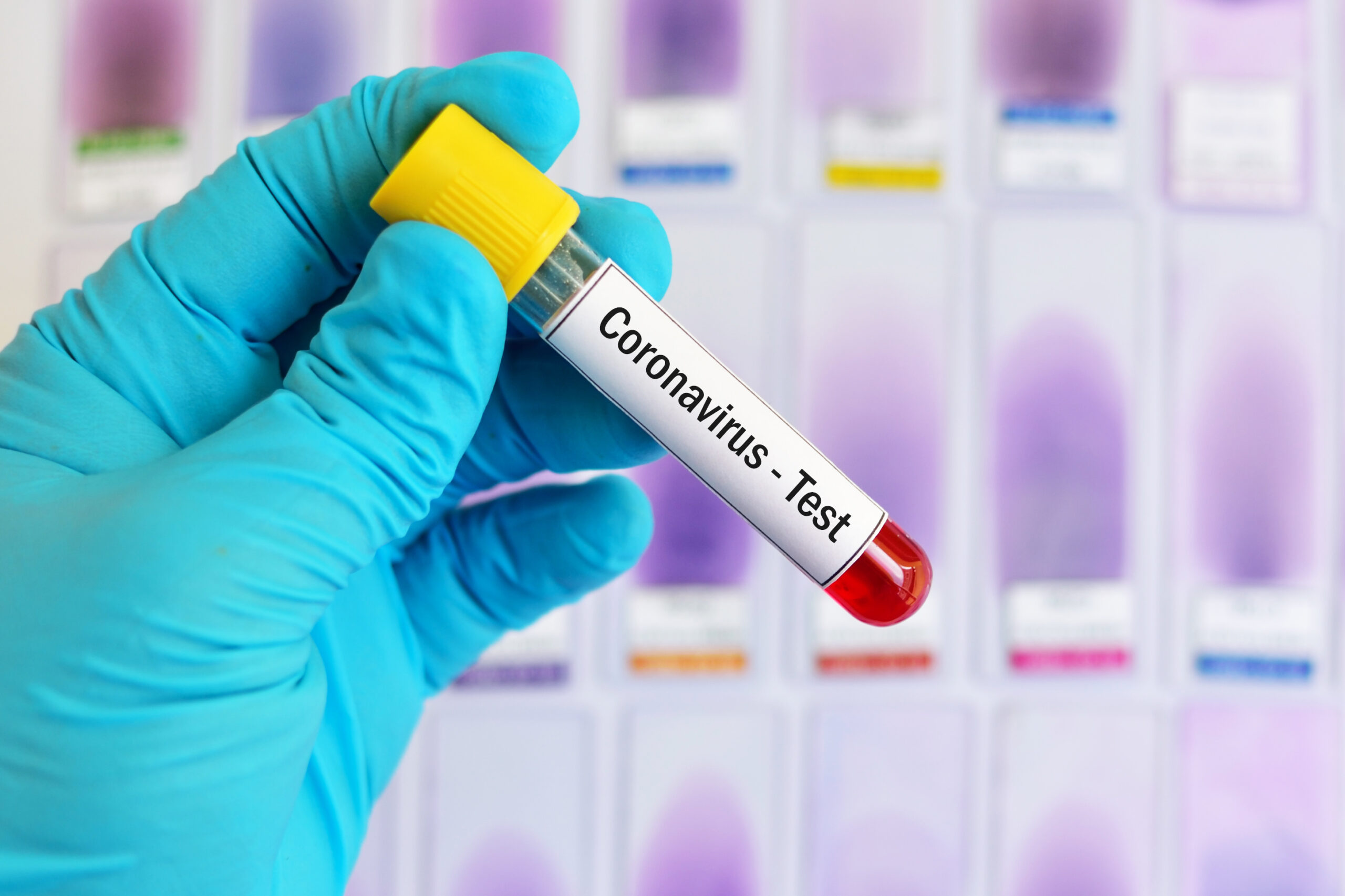 Image of sample for coronavirus test. Image credit: iStock