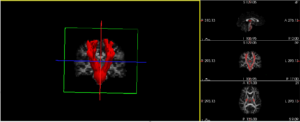 Computer recreation of patient MRI scans, abnormalities are undetectable with the naked eye. Red depicts the right side corticospinal tract, blue depicts the left. Image credit: Adam Lepley