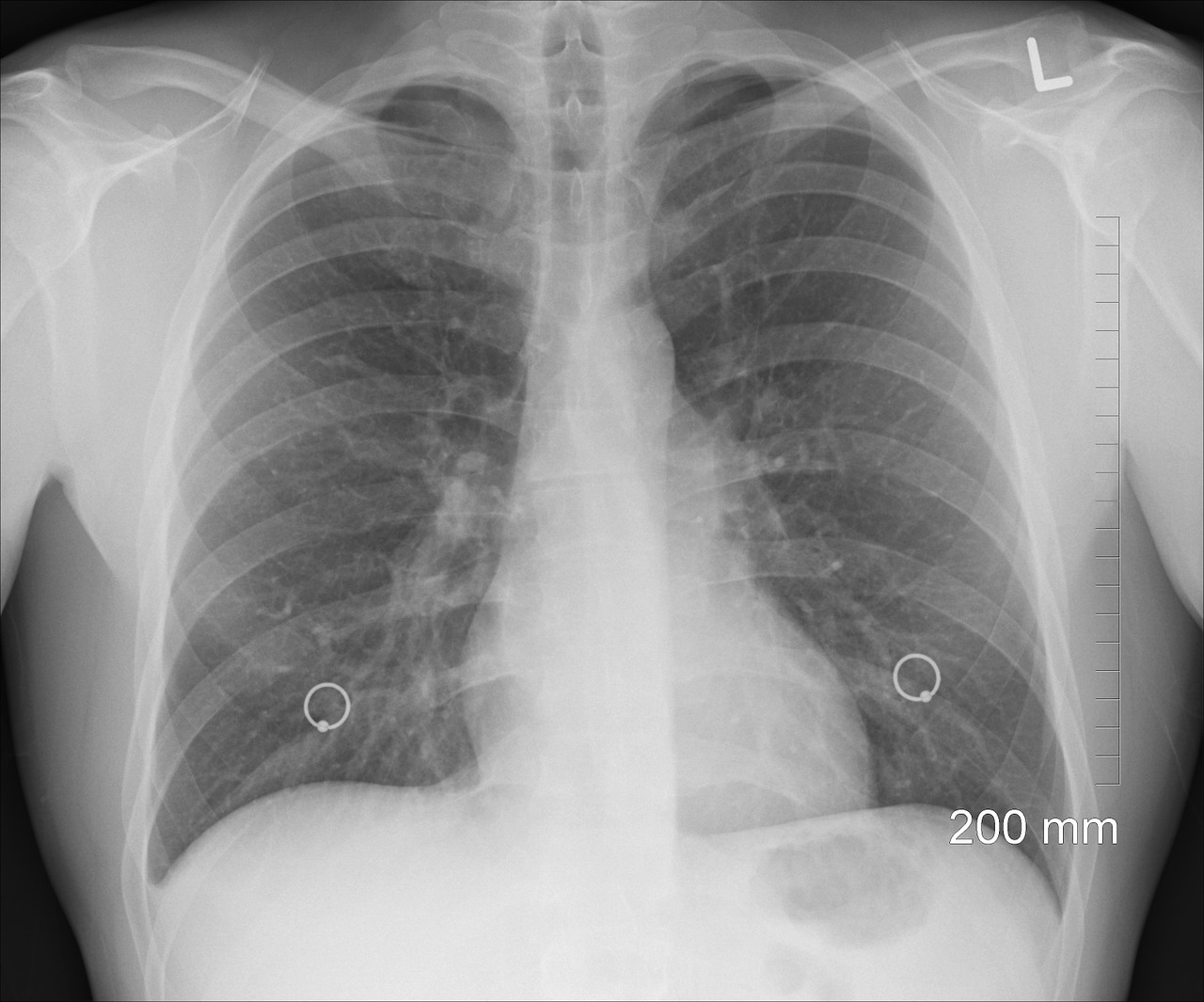 Photo of a chest x-ray. Image credit: Pixabay