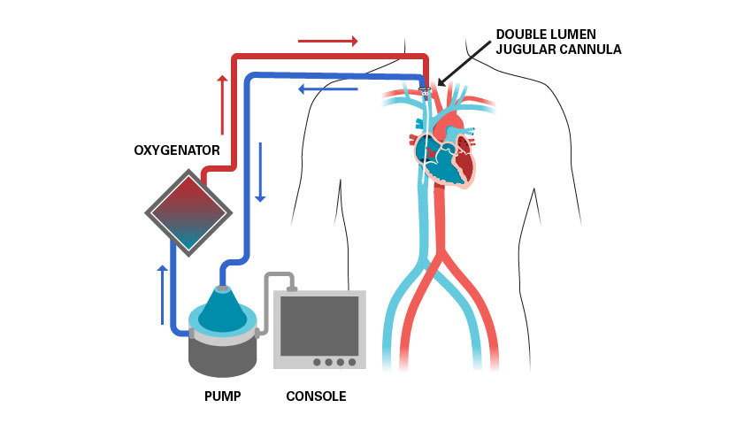 A simplified diagram of the type of ECMO circuit used in nearly all COVID-19 patients