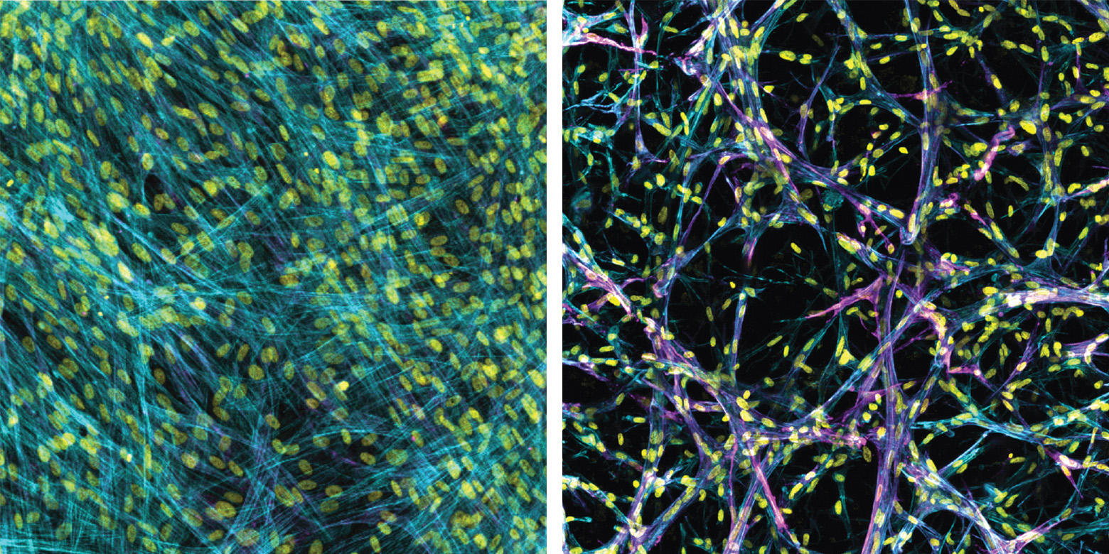 In line with prior work, myofibroblasts fail to accumulate in soft 2D settings (left). In the new 3d model (right) the myofibroblasts (magenta) accumulate, even in soft conditions that mimic a healthy lung. Images are stained for cytoskeleton (blue), cell nuclei (yellow), and a marker for myofibroblast activation (alpha-smooth muscle actin, magenta). Image credit: Baker Lab
