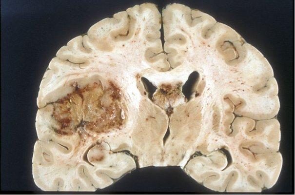 Macroscopic pathology of glioblastoma multiforme. Image credit: CC BY-SA 4.0 - Sbrandner