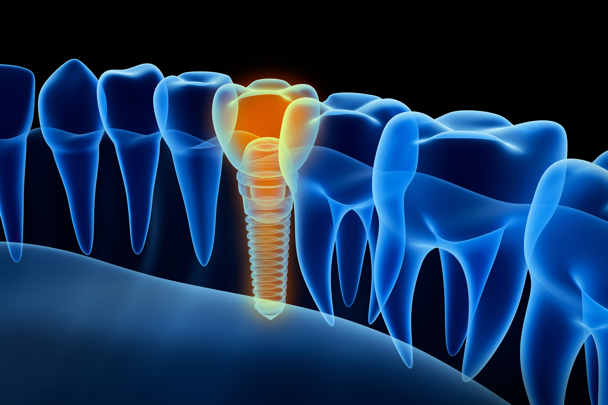 X-ray view of denture with implant.  Xray view. Medically accurate 3D illustration. Image credit: alex-mit, iStock